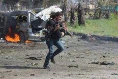 Репортер пытается спасти ребенка, пострадавшего от взрыва в Алеппо. Фотография — и история, которая за ней стоит