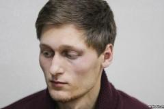 Закончился очередной срок проверки по поводу избиения Добровольского