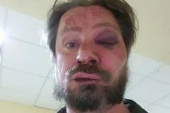 Автора программы «Экономика на пальцах» на TUT.BY Сергея Чалого избили: у него перелом носа и черепно-мозговая травма