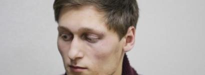 Избитый в суде журналист Павел Добровольский обжаловал наложенный на него штраф